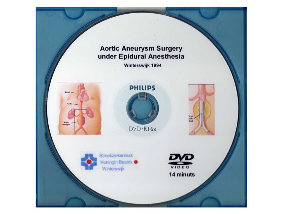 Aortic Aneurysm Surgery 1994