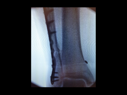 Foo Fighters Dave Grohl's ankle fracture II